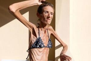 фото-анорексия-как-заболеть.jpg1_-1024x681